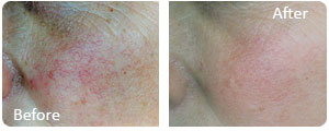 threat vein treatment before and after photos