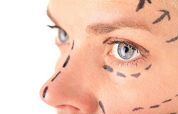 Directional lines on women's face
