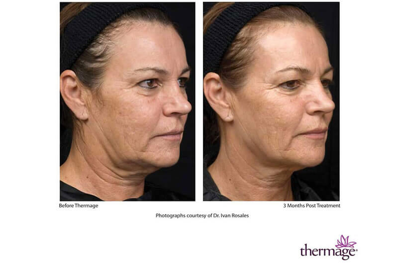 Before and After of Thermage Treatment on Cheeks
