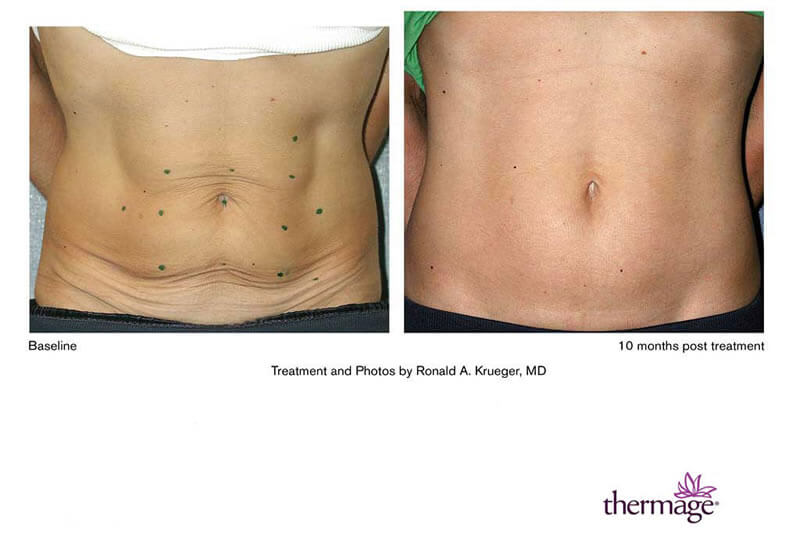 Before and After Results of Thermage Treatment