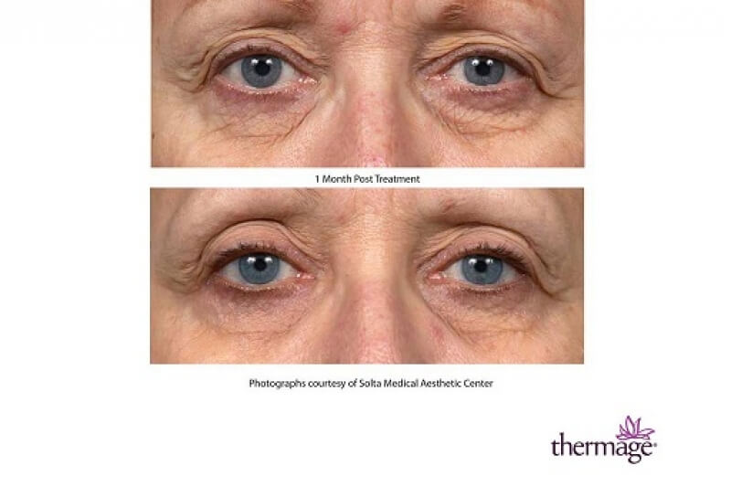 Thermage before and after photo