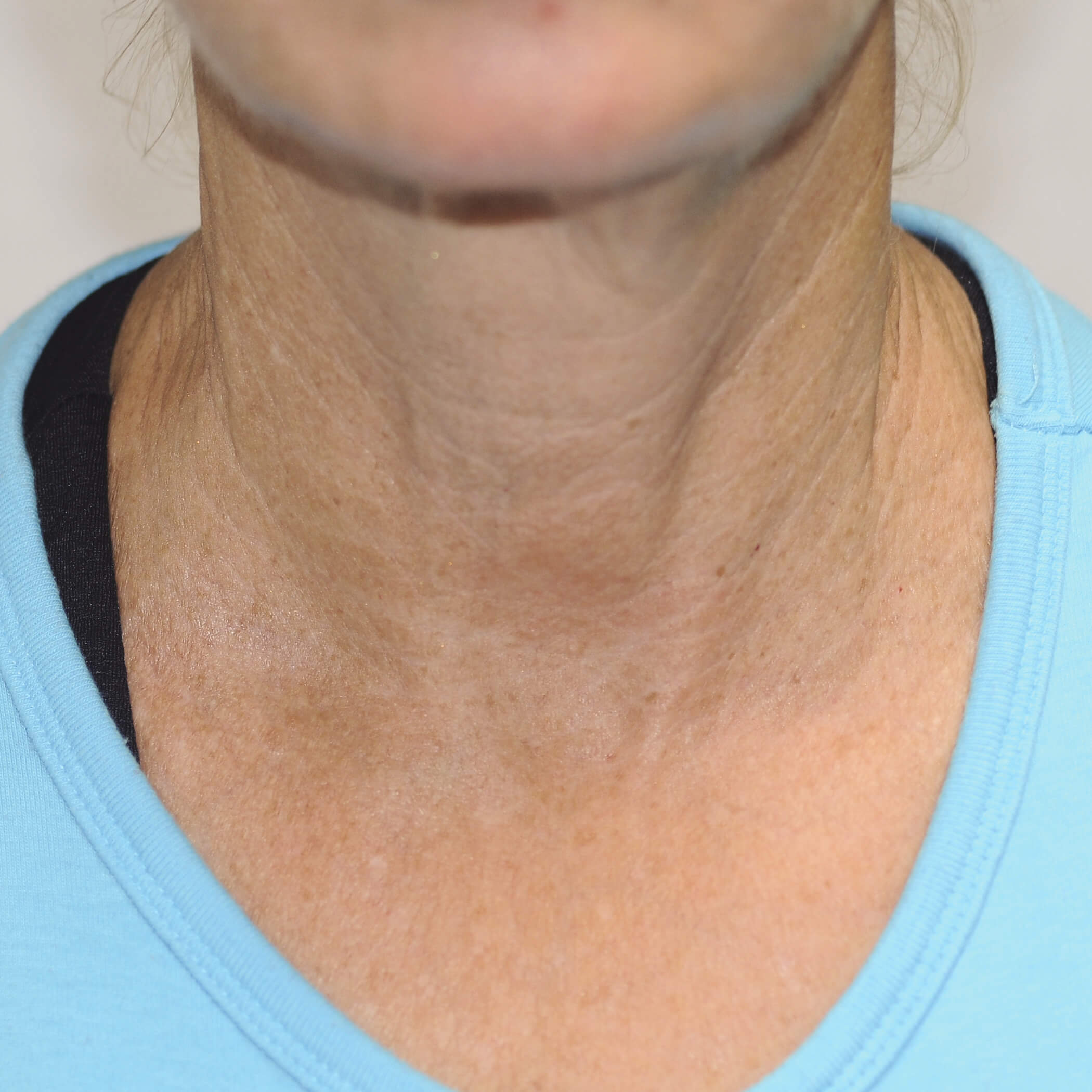 exilis facial skin tightening after neck