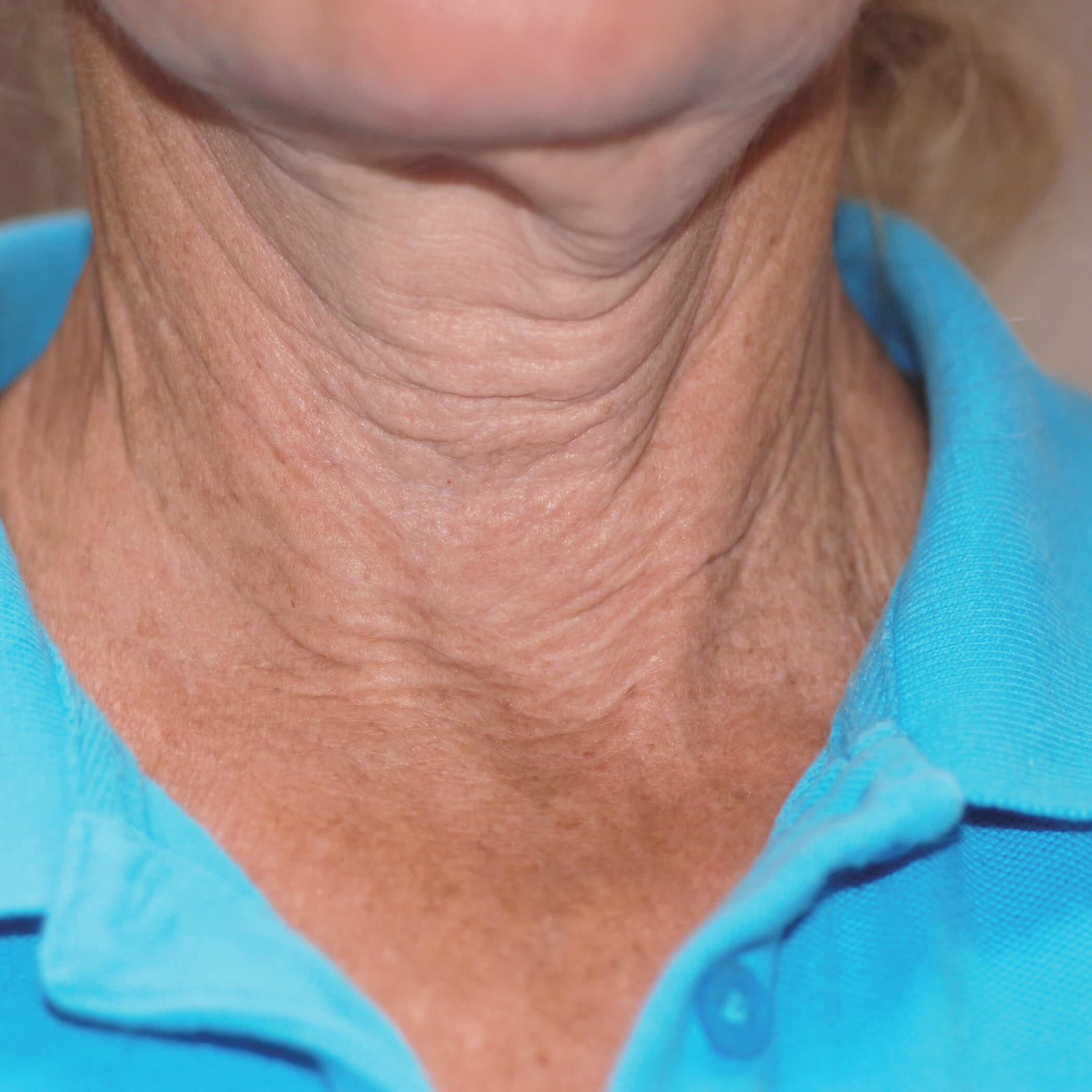 exilis facial skin tightening before