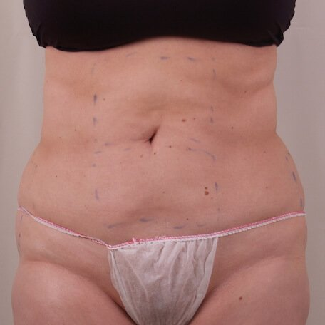 Exilis Fat reduction after treatment