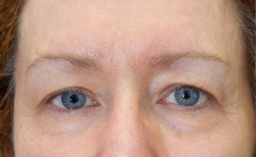 exilis facial skin tightening eyes after