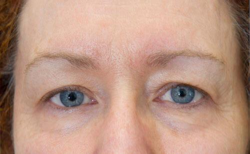 exilis facial skin tightening eyes after