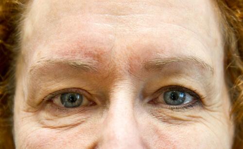 exilis facial skin tightening eyes before