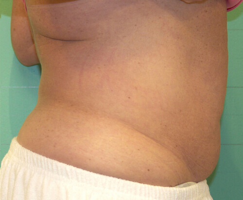 Exilis fat reduction after