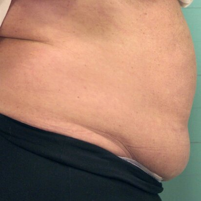 Exilis fat reduction before