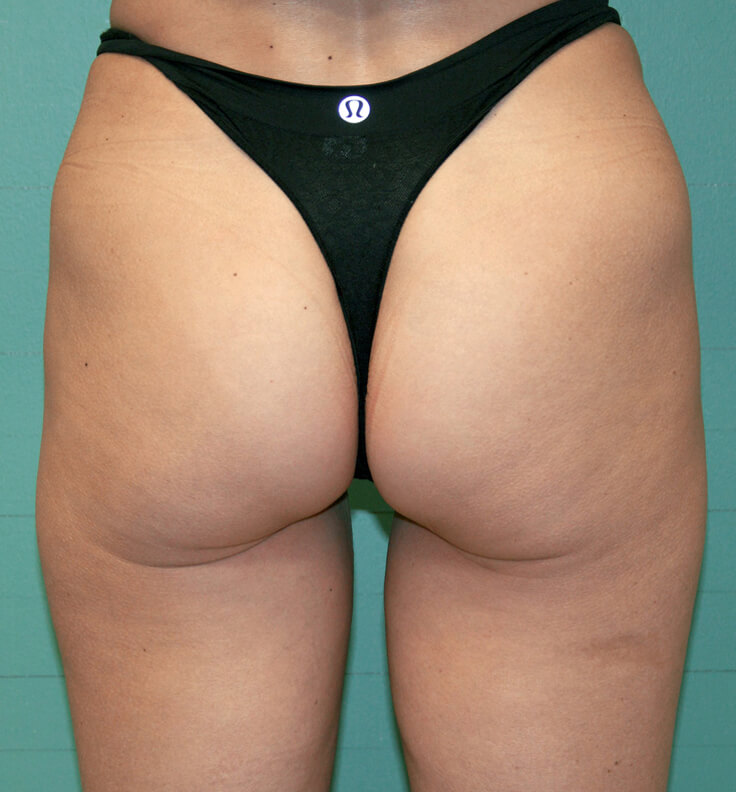 exilis after cellulite reduction