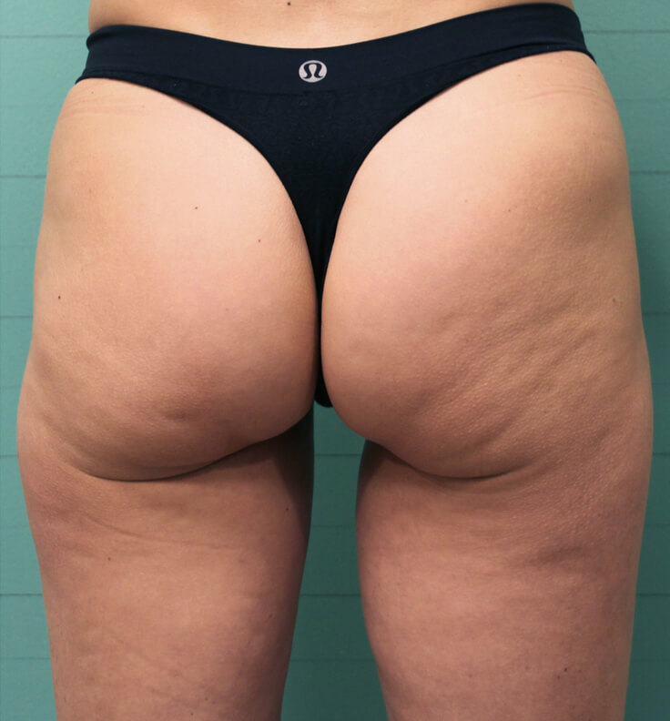 Exilis before cellulite reduction