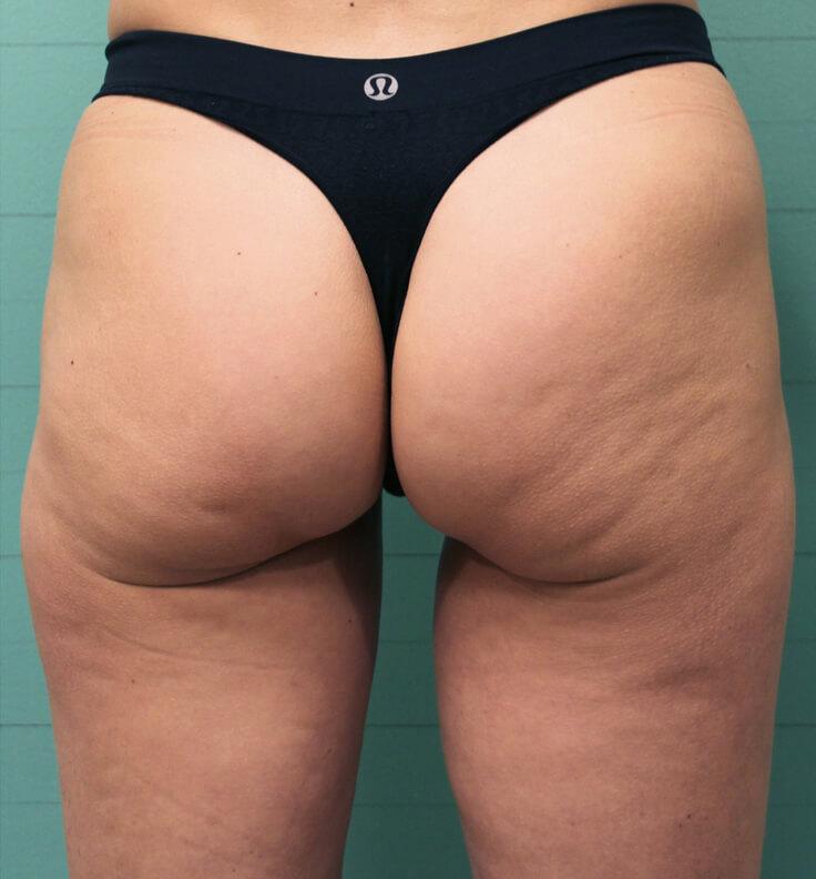 Exilis before cellulite reduction