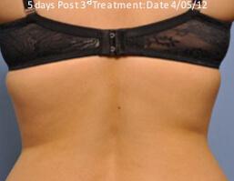 exilis fat reduction after