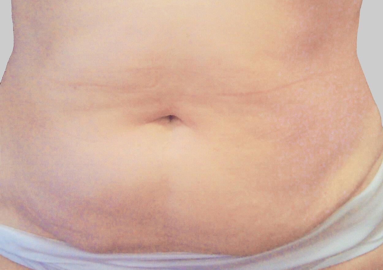 exilis after skin tightening