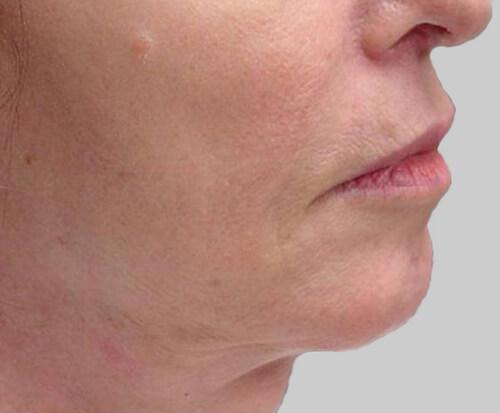 exilis facial skin tightening after