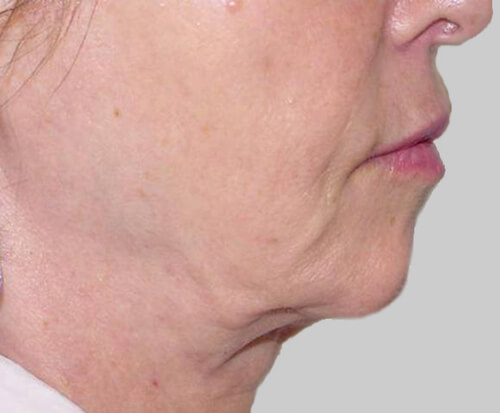 exilis facial skin tightening before