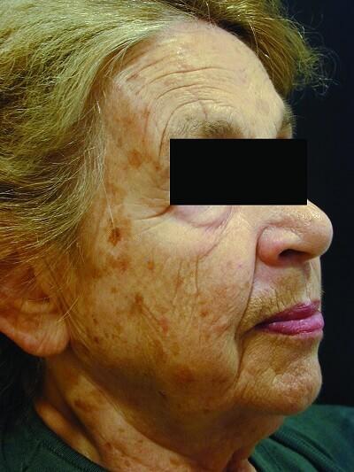 ipl skin rejuvenation before treatment