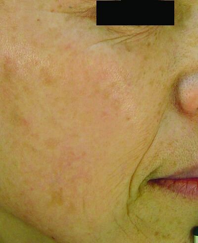 ipl skin rejuvenation after treatment