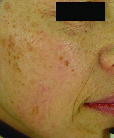 ipl skin rejuvenation beforetreatment
