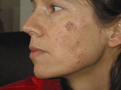 ipl skin rejuvenation before treatment
