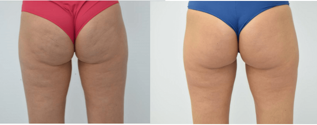 Unison client before and after cellulite treatment