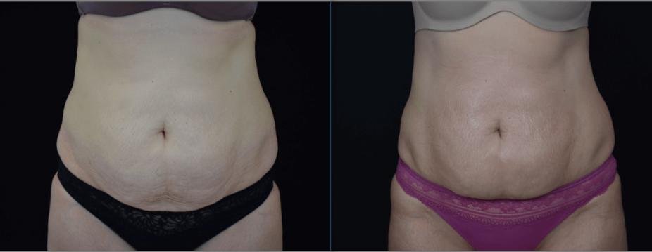 skin tightening client with btl unison