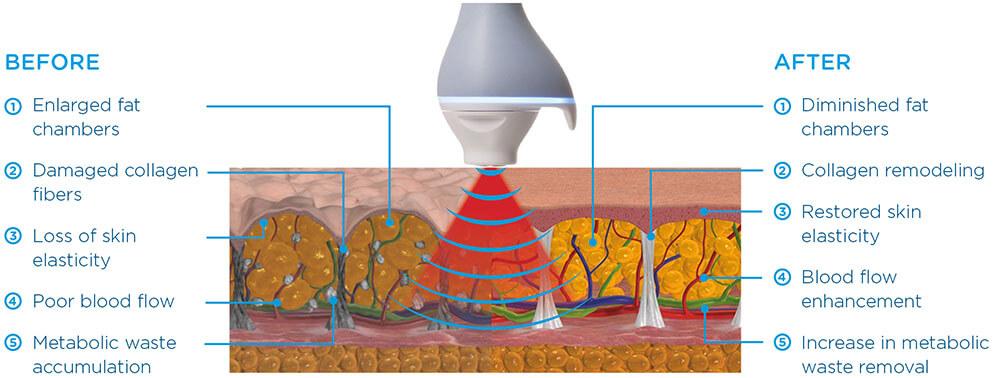 BTL Unison cellulite cross section
