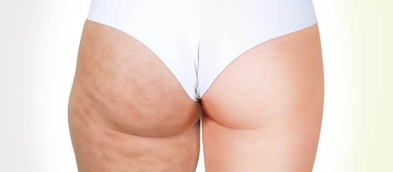 Cellulite legs before and after