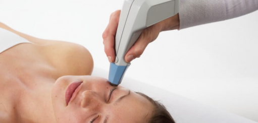 Exilis treatment