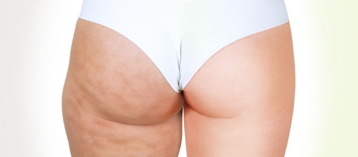 4 Free Cellulite Treatments with Endermologie courses