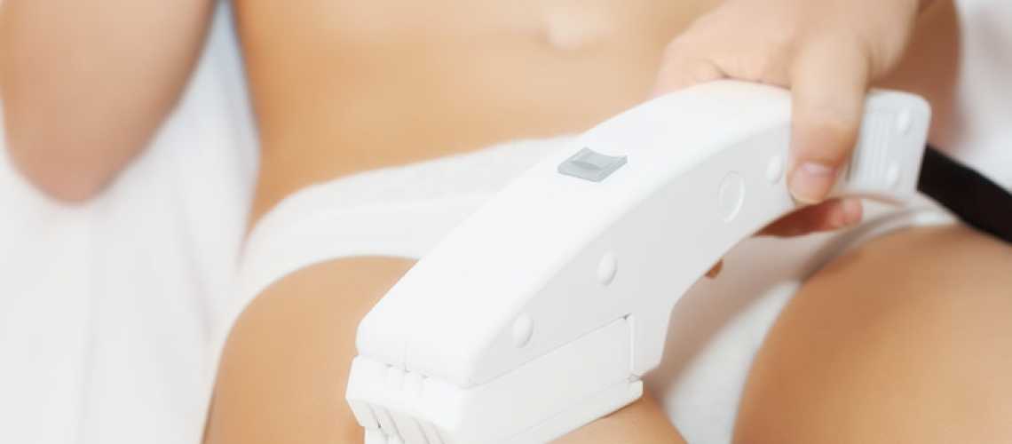 Save 30% to 50% on IPL hair removal